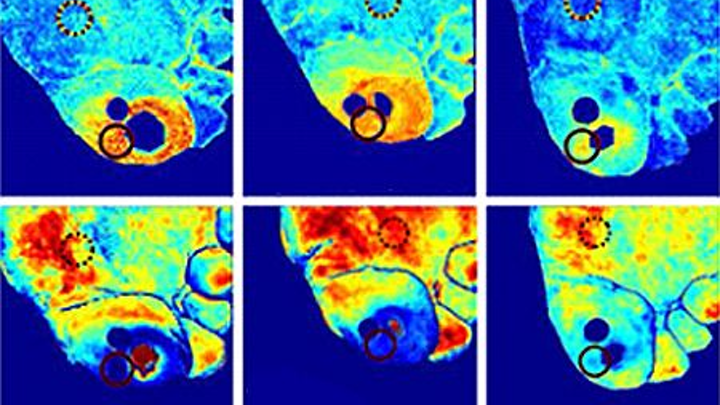 Hyperspectral imaging helps diagnose ulcers