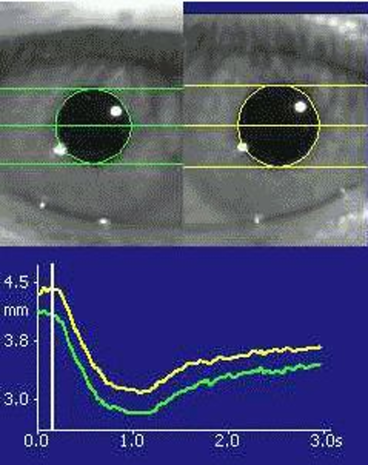 NeurOptics Pupillometer infrared eye test enables more objective neurological diagnoses