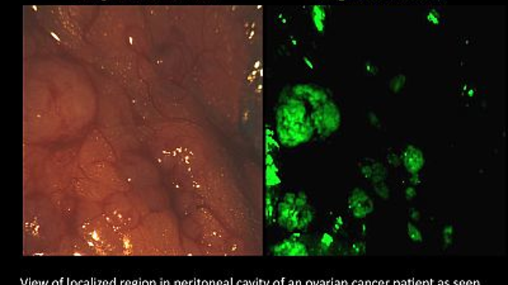 Multispectral technique combines with fluorescing agent for targeted cancer surgery