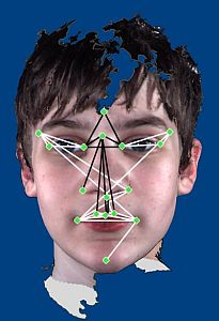 3-D camera helps identify autistic differences