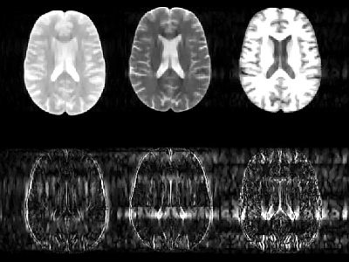 An image-processing algorithm developed at MIT helps to reduce MRI scanning time by predicting the likely position of tissue boundaries in subsequent scans