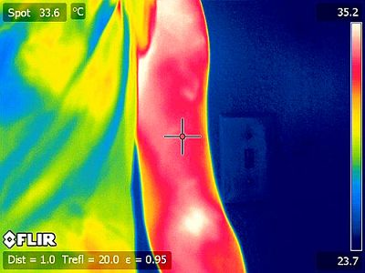 Scientists from Loma Linda and Asuza Pacific Universities have employed thermal imaging to help in quantifying muscle soreness. (Source: The Journal of Visualized Experiments)