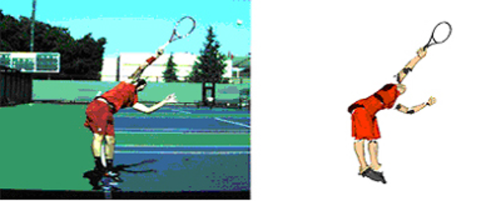 Marker less motion capture system offers fresh insights into tennis injuries