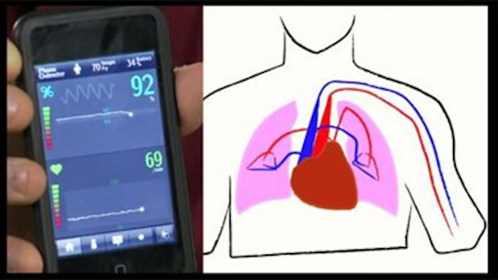 Cell phone helps diagnose pneumonia