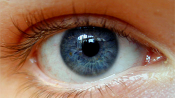 Images of the eye linked to heart disease
