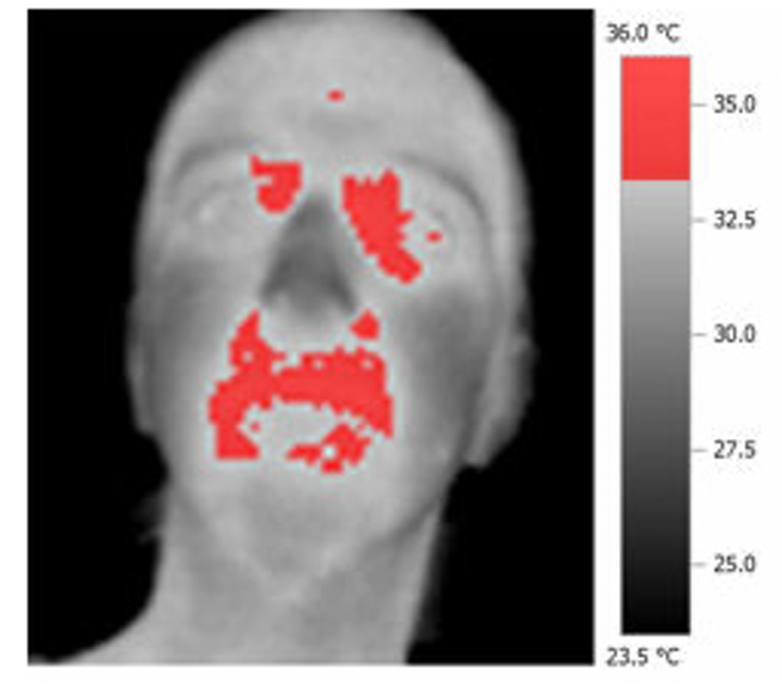 Thermal cameras capture temperature rise during social interactions