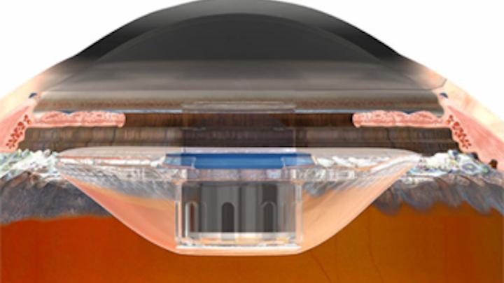 Eye telescope helps restore vision