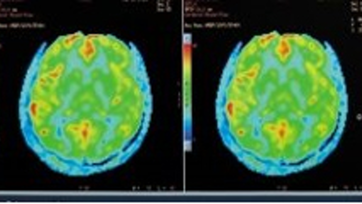 MRI maps the development of the brain