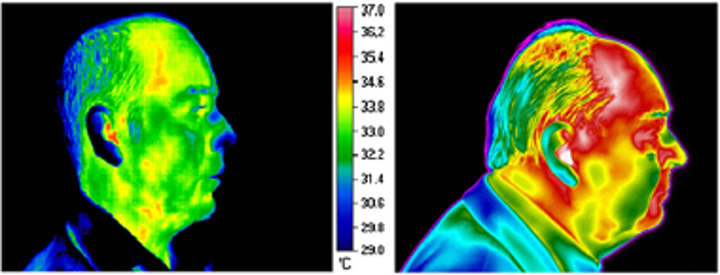 Thermal imaging makes a move into medicine