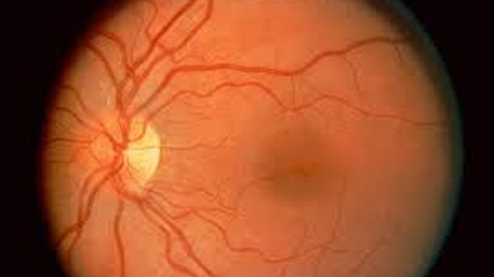 Hand held instrument inspects the retina