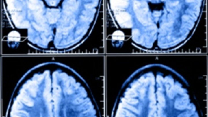 Software analyzes MRI scans
