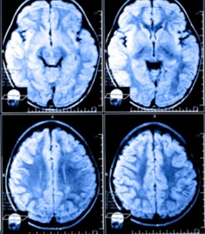 Software analyzes MRI scans