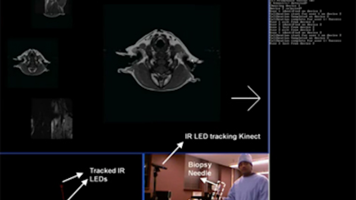 Kinect system helps doctors review records