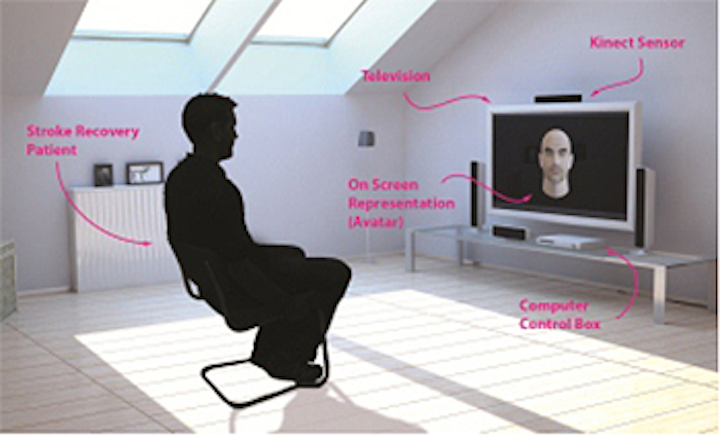 Kinect aids rehabilitation of stroke patients