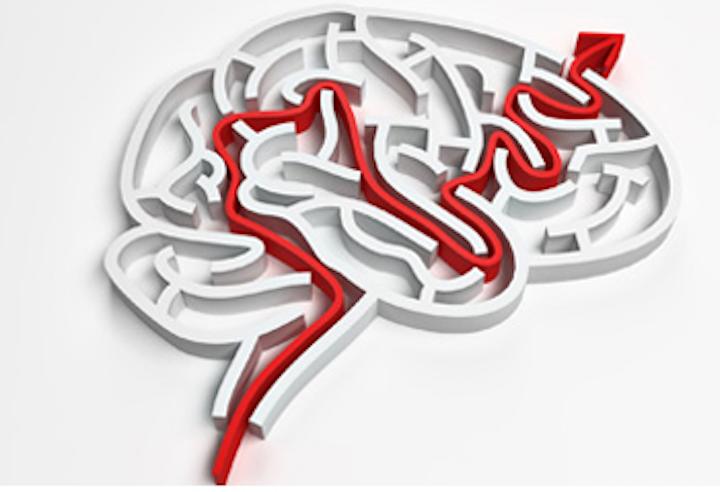 Software automates brain image analysis