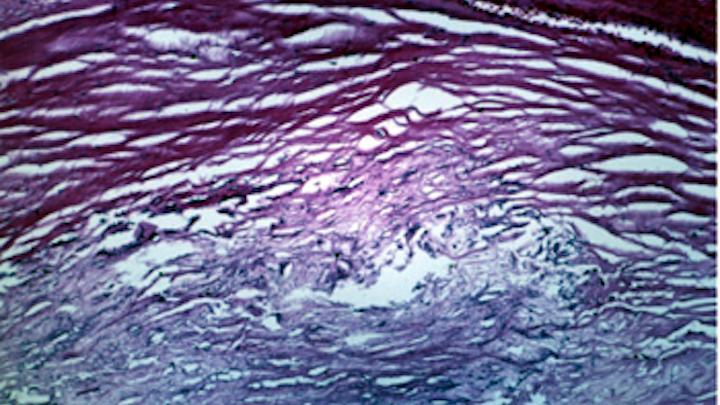 Artery walls imaged in vivo