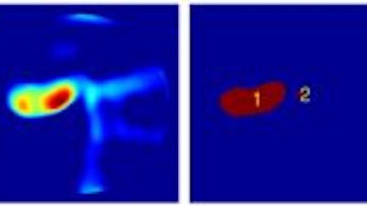 Content Dam Vsd Online Articles 2013 05 Polyp Detection