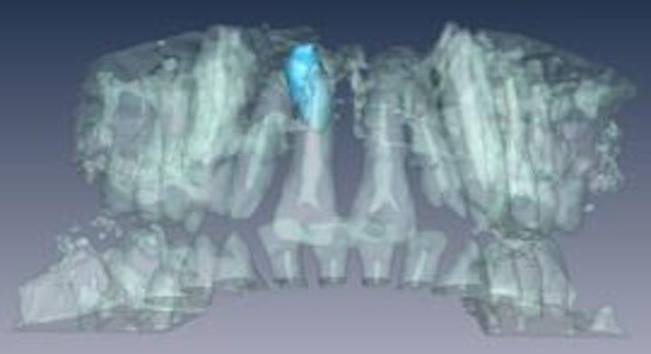 Content Dam Vsd Online Articles 2013 07 Dentist Mri