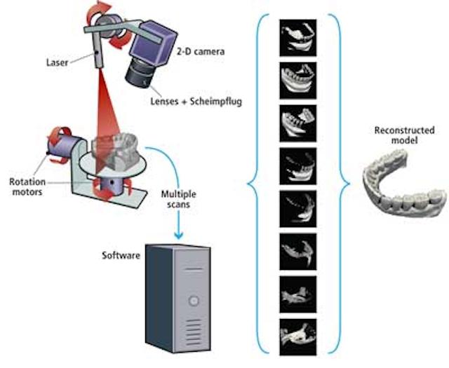 3-D Scanner Images Dental Molds | Vision Systems Design