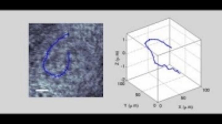 Content Dam Vsd En Articles 2014 02 Scientists Capture First 3d Movie Of Living Sperm Leftcolumn Article Thumbnailimage File