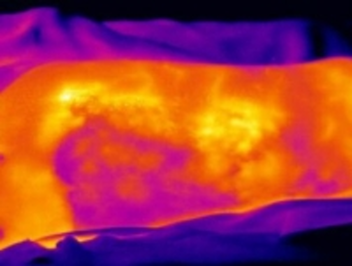 Content Dam Vsd En Articles 2015 02 Infrared Imaging Helps Assess Burn Wounds For Treatment Evaluation Leftcolumn Article Thumbnailimage File