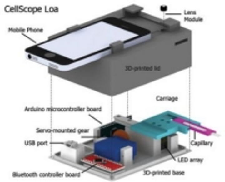 Content Dam Vsd En Articles 2015 05 Iphone Microscope Automates Detection Of Parasites In Blood Leftcolumn Article Thumbnailimage File