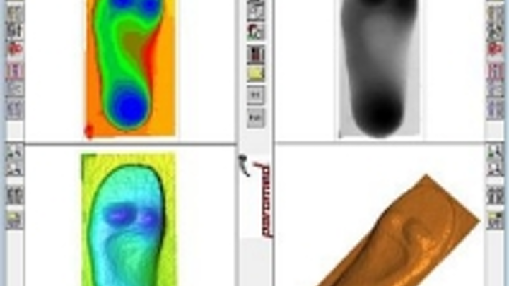 Content Dam Vsd En Articles 2015 10 3d Cameras Ensure The Accurate Development Of Custom Shoe Insoles Leftcolumn Article Thumbnailimage File